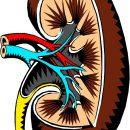 Studiu de caz: Infecție de tract urinar complicată